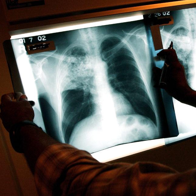 Tuberculosis Priority