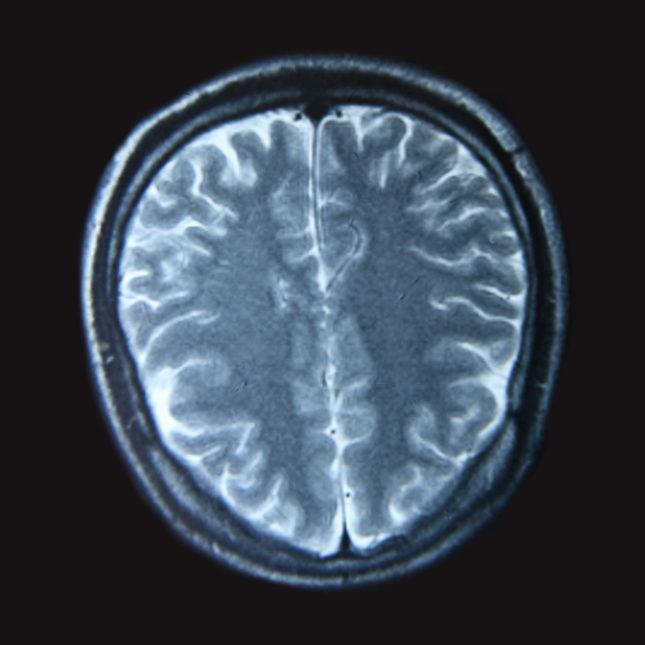 Superager Brain