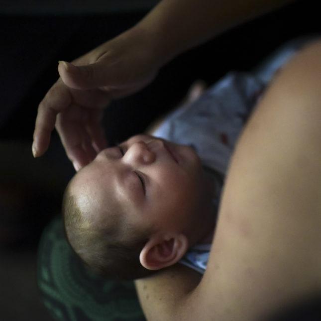 Puerto Rico Zika Birth Defect