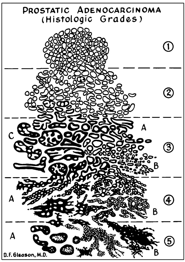 Gleason scale