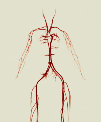 Sepsis illustration