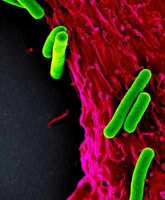 Heart bacteria