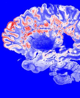 multiple sclerosis brain scan
