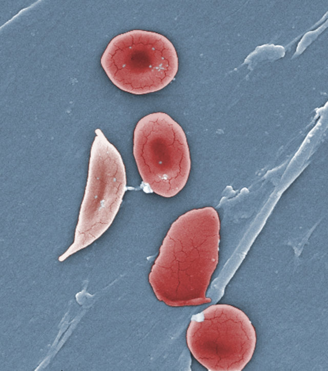 Gene Therapy Sickle Cell