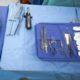 Liver transplant