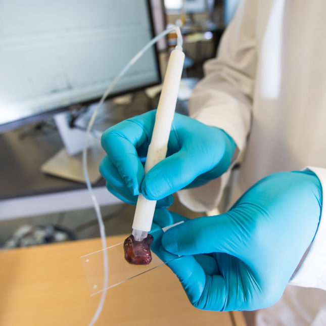 A Pen-Like Probe Can Detect Cancer Tumors in Few Seconds