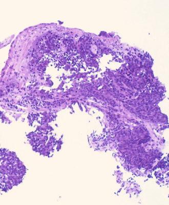 Biopsy sample