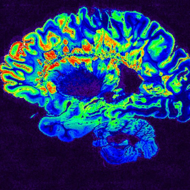 Multiple sclerosis brain
