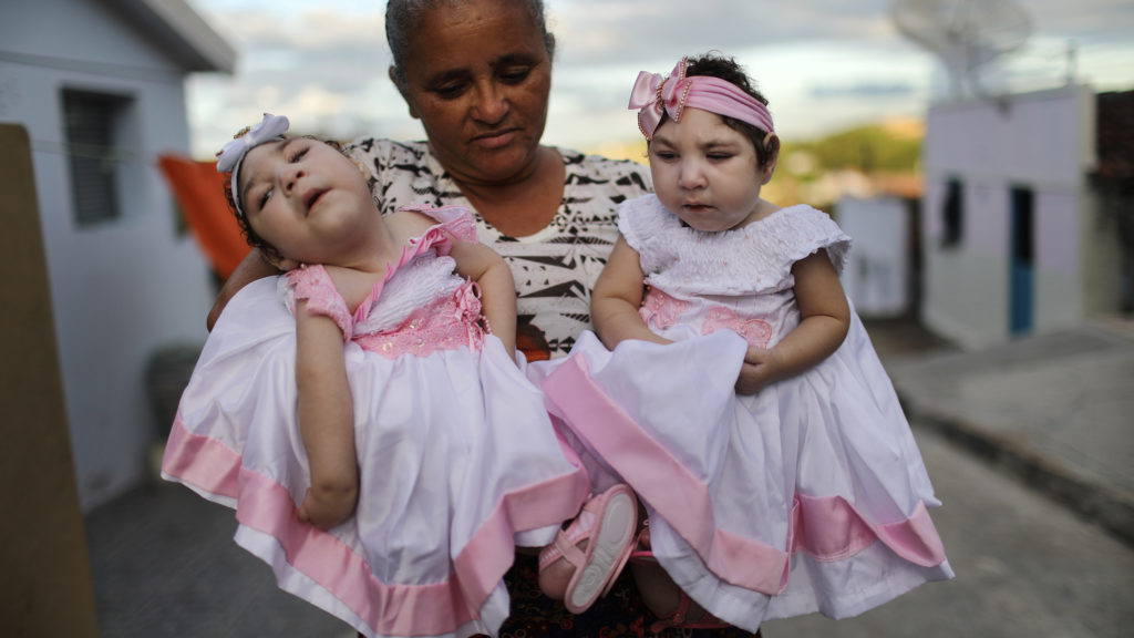 Twins Born With Zika