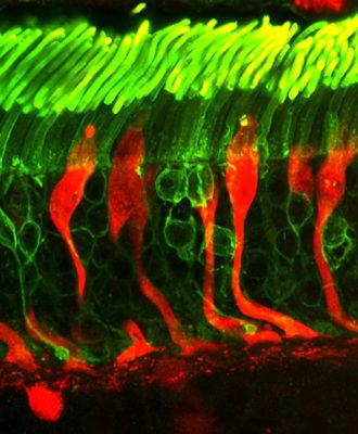 Rods and cones photoreceptors
