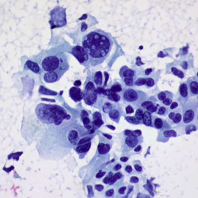 Non-small Cell Carcinoma of the Lung