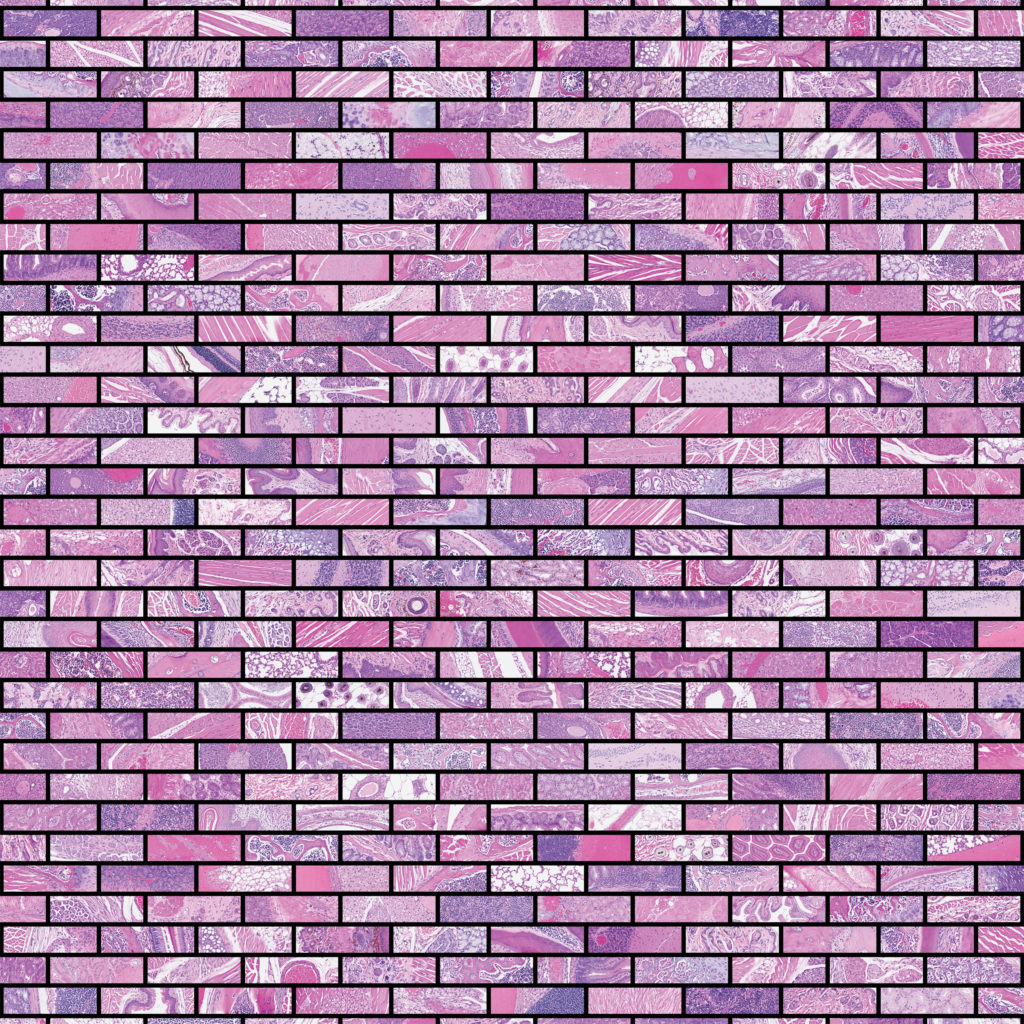 EXPOSED BRICK: BUILDING A CASE FOR IMMUNE CLEARANCE OF ANEUPLOID CELLS