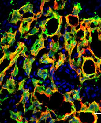 Duke cancer/stomach cells