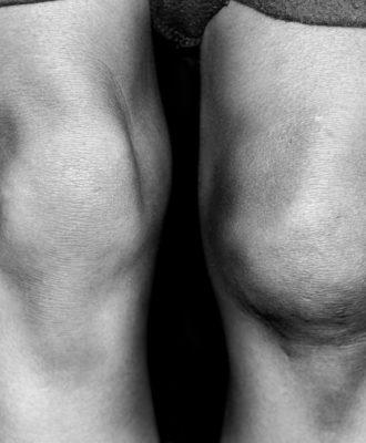 Knees