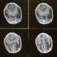 Zika brain scan