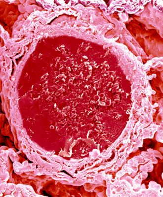 A scan of an electron micrograph of a blood vessel in the lung.
