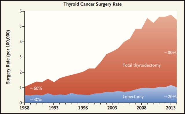 Thyroid cancer surgery rates