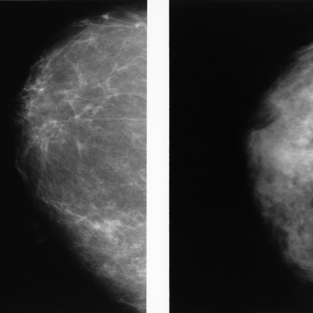 A side-by-side of two mammograms showing the difference between a dense breast and a fatty breast.