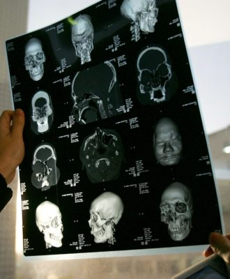 A CT of a face transplant patient.