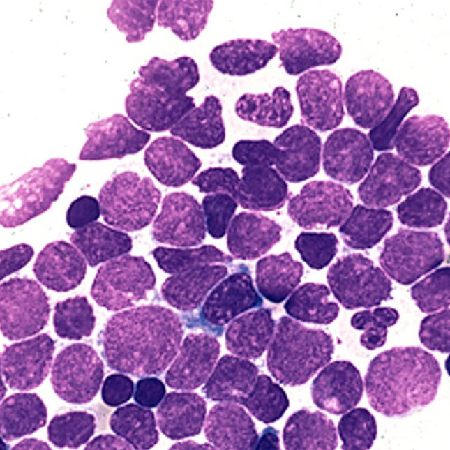 in rare car t case, a patient\u0027s cancer cell went hiding in \u0027plain sight\u0027precursor b cell acute lymphoblastic leukemia peter maslak, susan mckenzie ash image bank 1843 american society of hematology