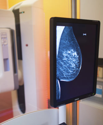 Mammography screening Program