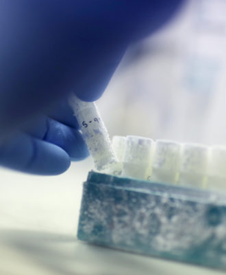 IVF frozen samples