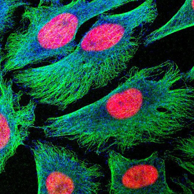 Human cancer cells in culture