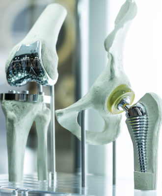 The medical device tax on things like knee and hip prostheses wouild increase their cost and harm jobs in the industry.
