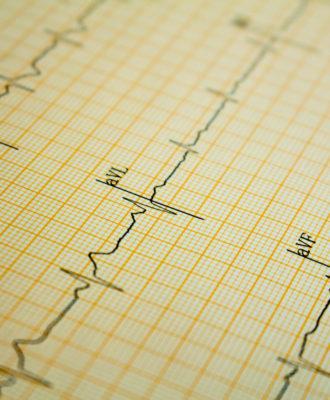 Electrocardiogram readout