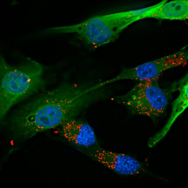 Glioblastoma Cells