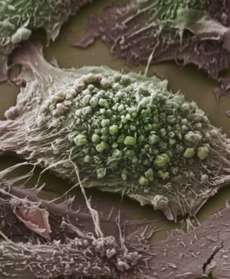 Lung Cancer Cell