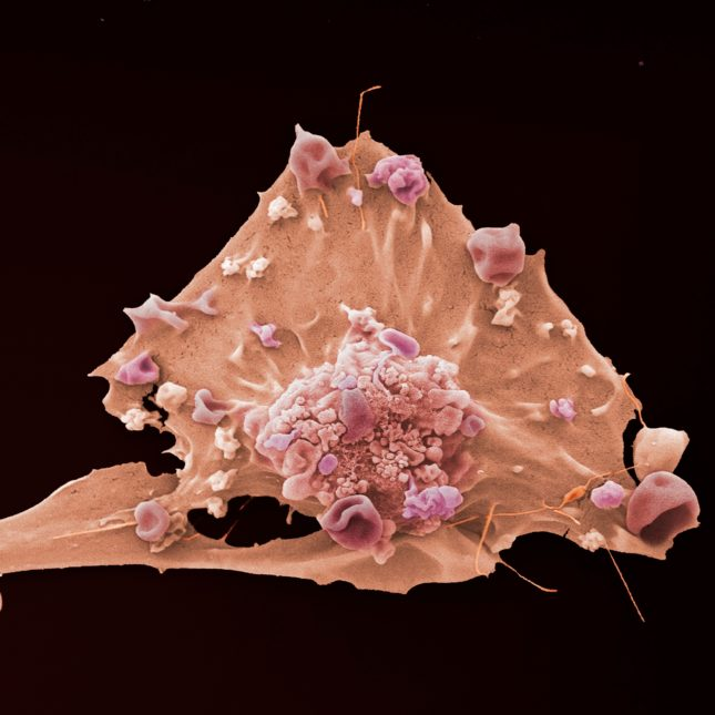 Breast Cancer Cell - pink