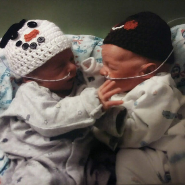 Clinicians Scramble To Save Twins From The Disease That Took Their