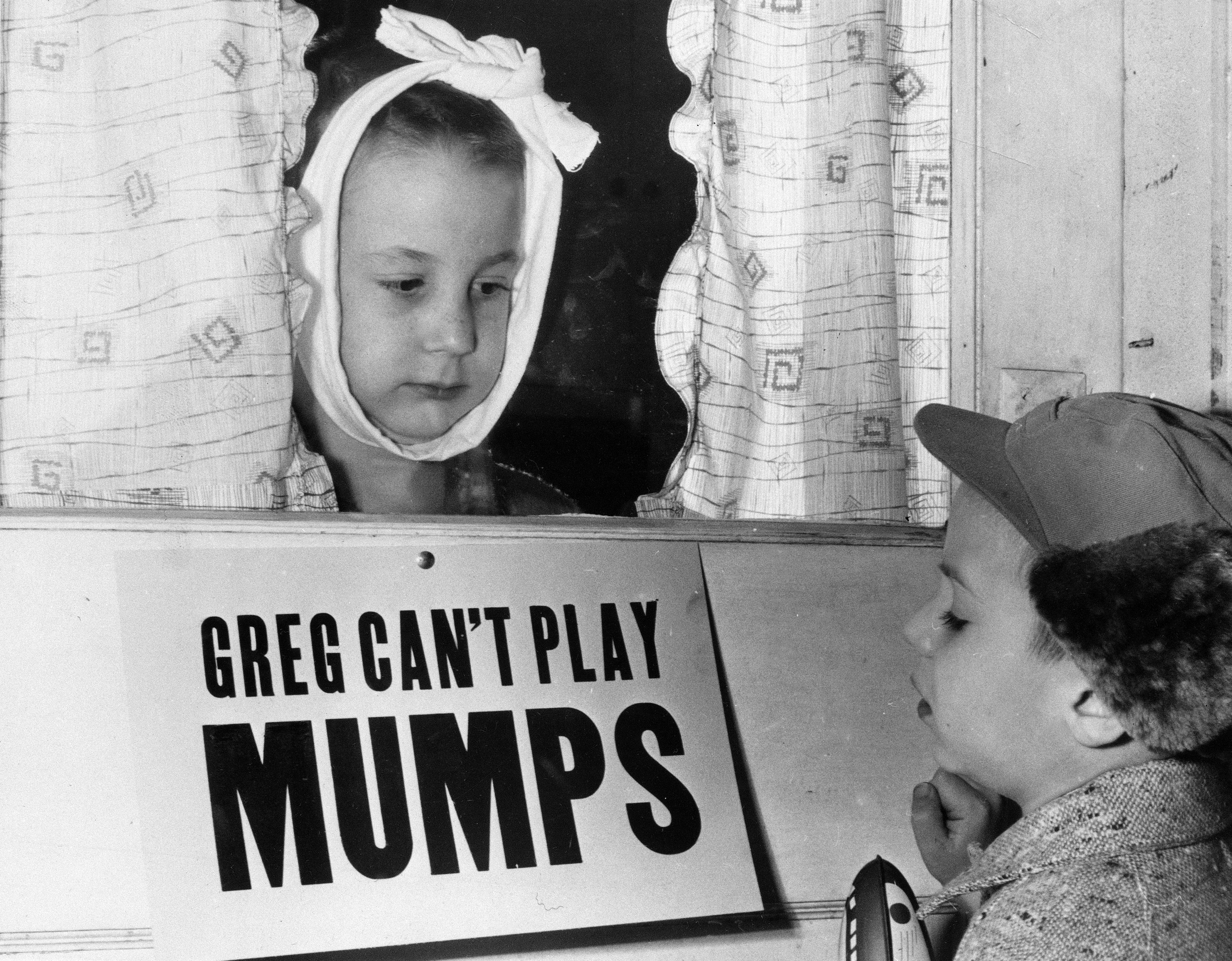 Mumps natural remedies for 13 Best