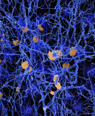 Alzheimer neuron network with amyloid plaques