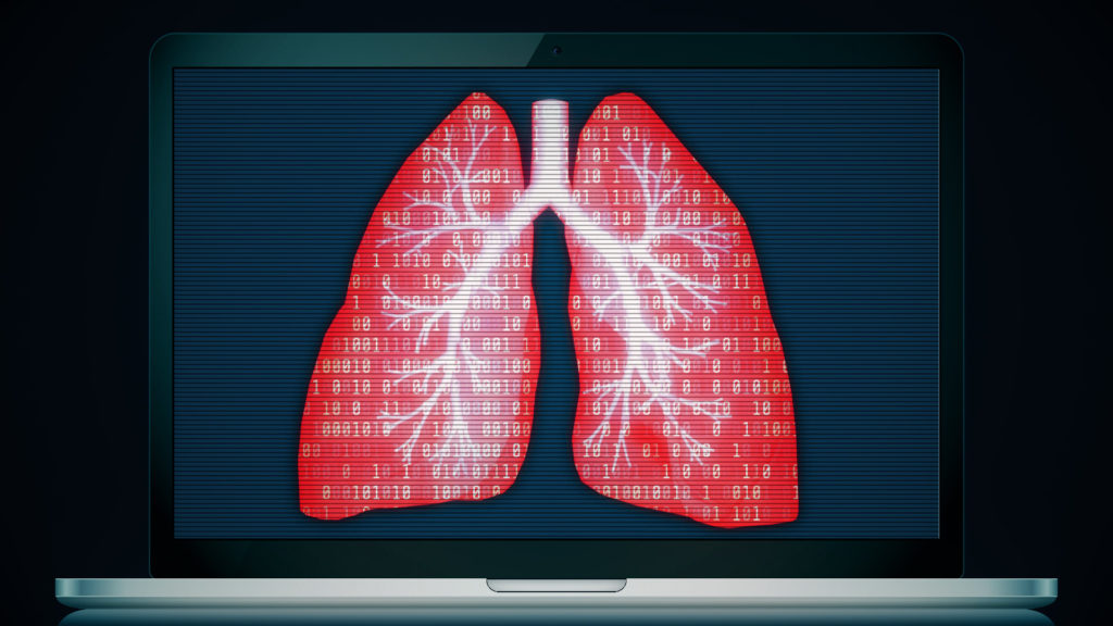Behind the scenes of Google's effort to test AI for lung-cancer screening