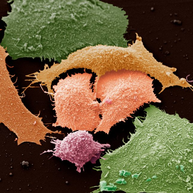 Colorized lung cancer cells