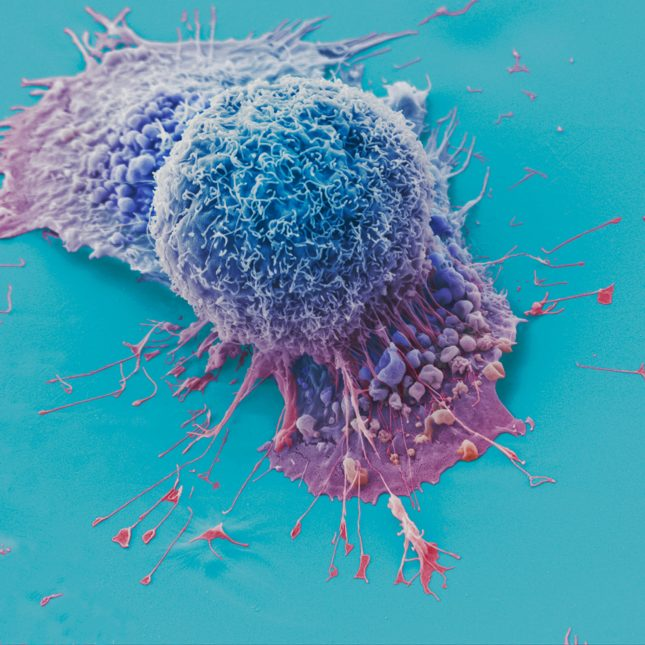 Lung Cancer Cell - blue and pink