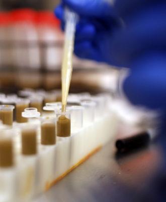 Fecal transplant lab