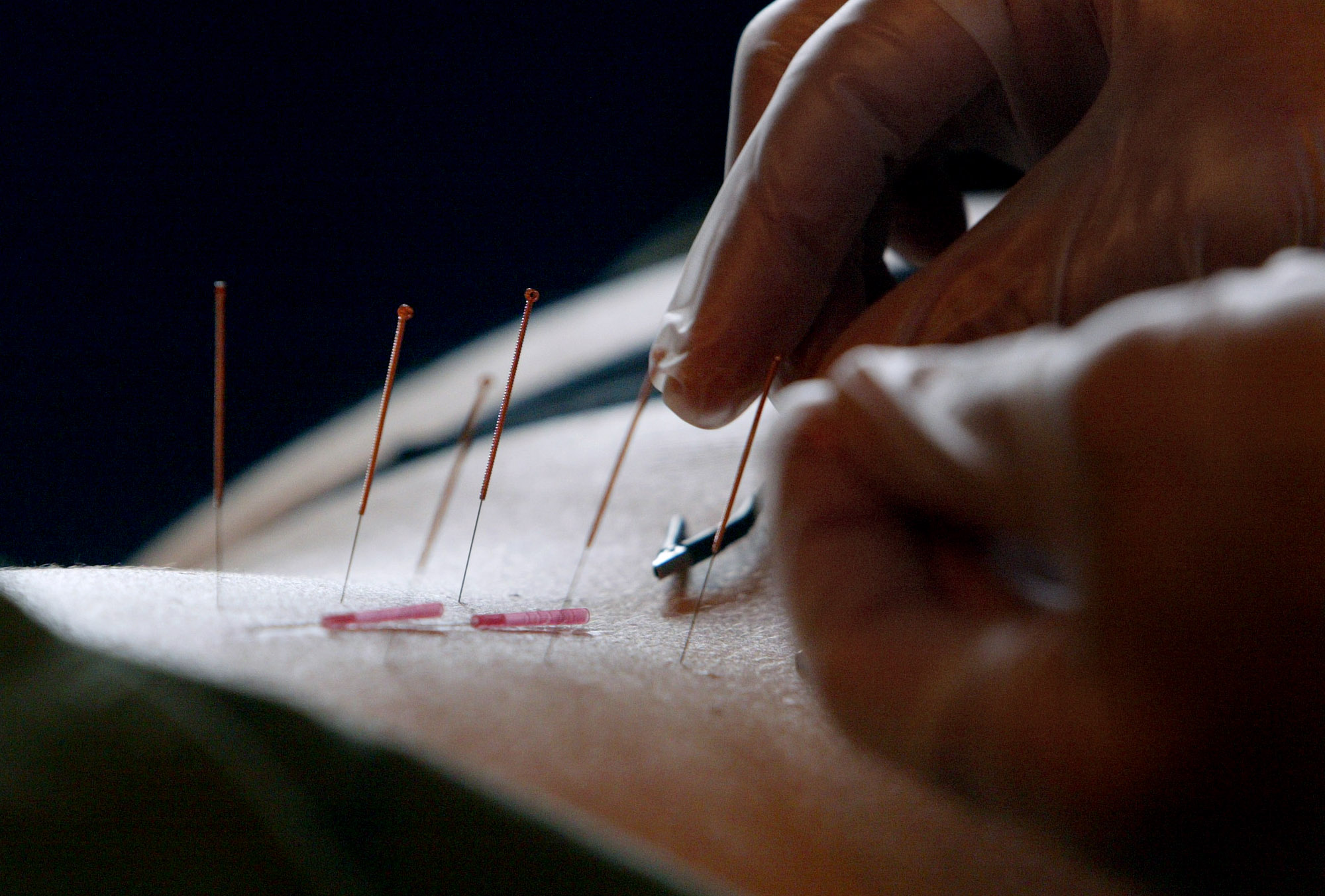 Medicare proposal would cover acupuncture to treat lower back pain for patients in studies