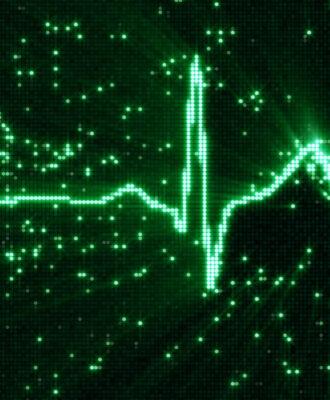 Digital EKG