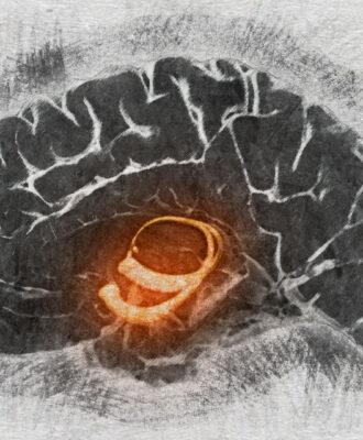 Hippocampus & Alzheimer's