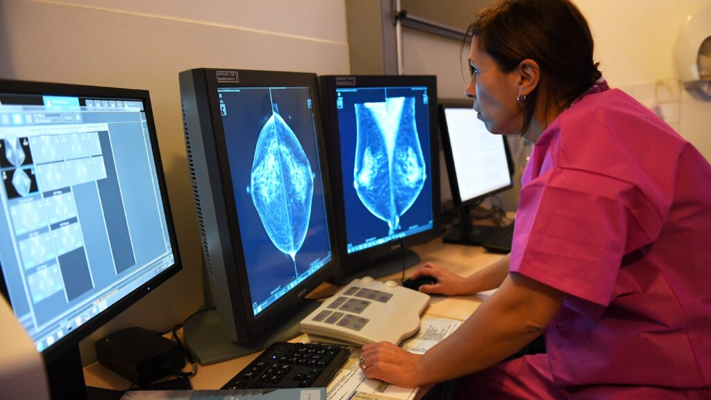 Hormone therapy during menopause raises breast cancer risk for years, study finds