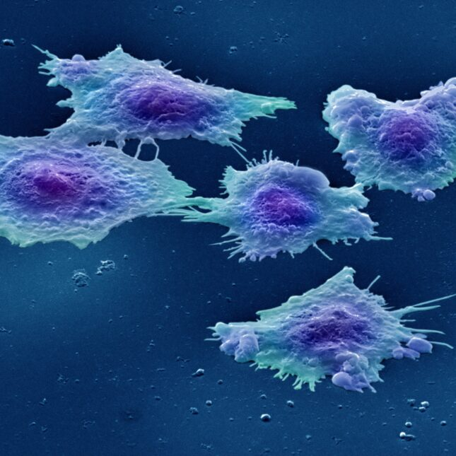human colon cancer cells