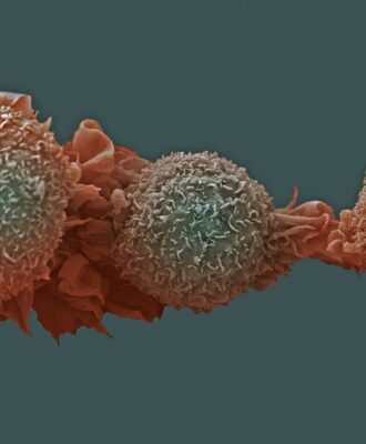 Lung Cancer Cells on green background
