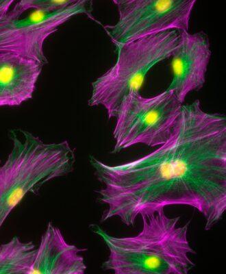 ASH 19 - Fluorescent osteoblast cells