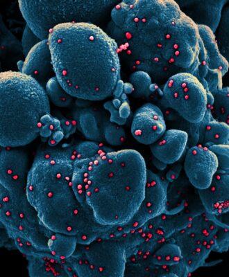 SARS-CoV-2 electron micrograph