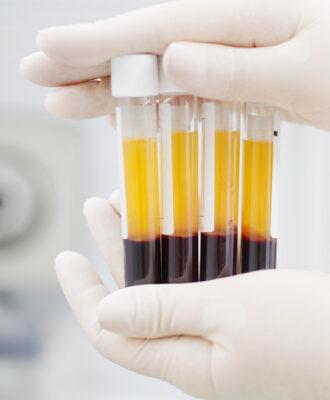 Blood plasma tubes