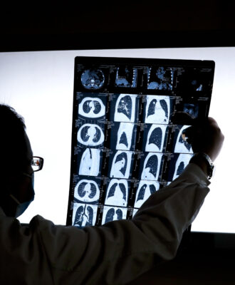 doc and lung ct scan