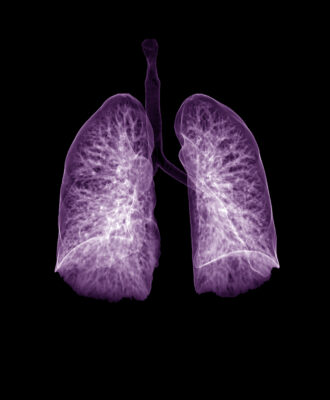 purple lungs ct